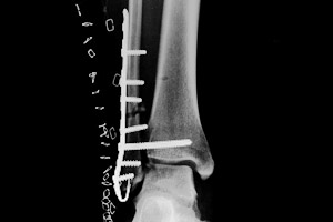 Ankle Hook Plate X-Ray