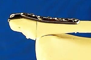 Ankle Hook Plate Sawbone