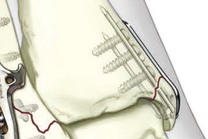 Medial Malleolar Pin Plate Illustraion