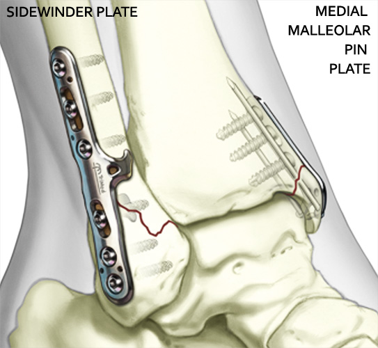 Medial Malleolar Pin Plate and Sidewinder - Part of the TriMed Ankle Fixation System