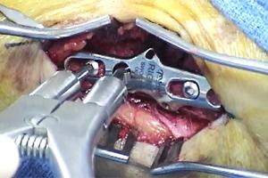 Sidewinder Plate Surgery