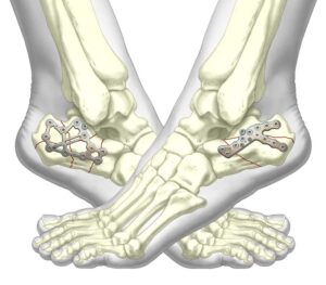 Calcaneal Fracture Fixation System