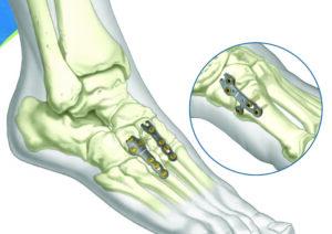 ASET Foot Plating System: Hooks