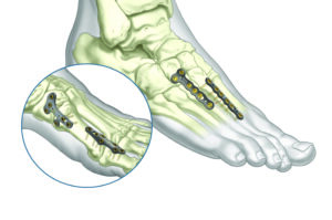 ASET Foot Plating System: Plates