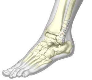 Ankle Fixation System