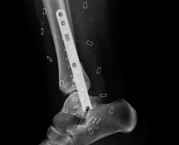 Long Ankle Hook Plate™ X-ray
