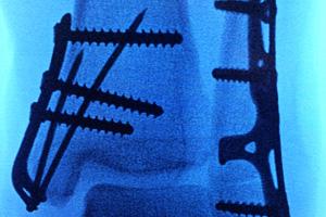 Medial Malleolar Pin Plate X-Ray